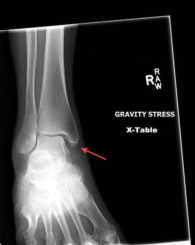gravity-stress-mortis-1